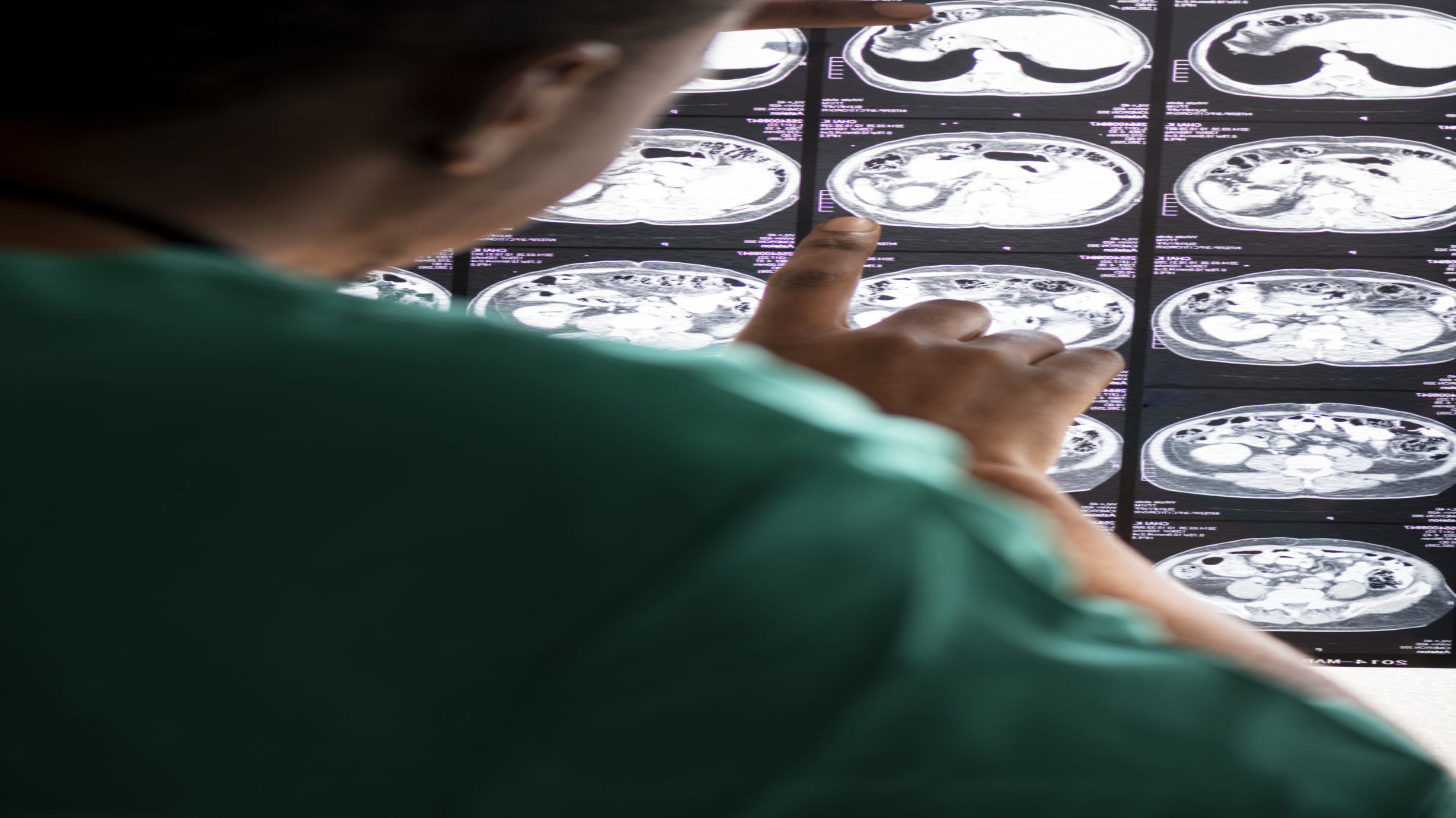 cropped-doctor-reading-brain-mri-x-ray-result-PZJYCXB-e1564698475951.jpg